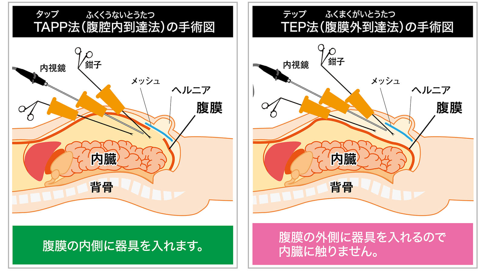 TAP法とTEPP法